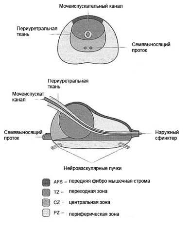 Хронический простатита можно посещать сауну