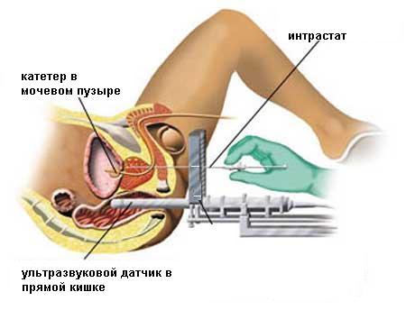 Методика тур при раке предстательной железы